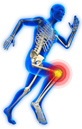 Sports after joint replacement