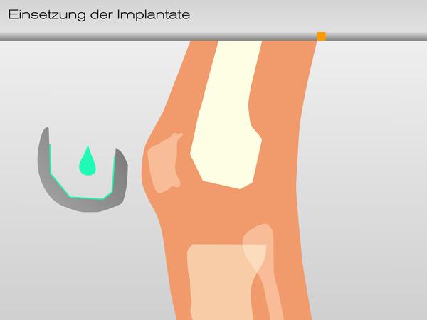 knie_einsetzung_implantate01-600