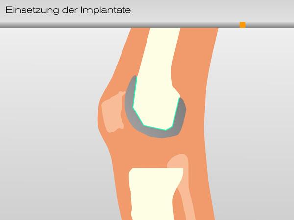 knie_einsetzung_implantate02-600