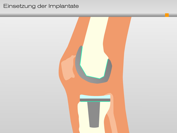 knie_einsetzung_implantate04-600
