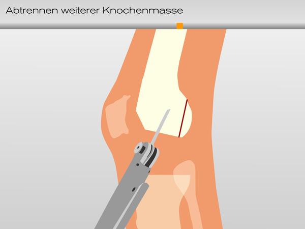 knie_knochenmasse02-600