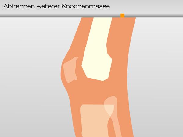 knie_knochenmasse03-600
