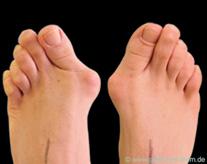 Abbildung 1: (vor OP): Fuß Hallux Valgus