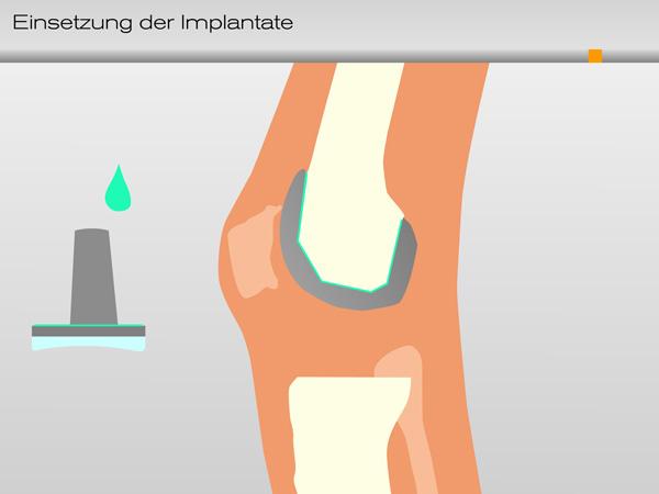 knie_einsetzung_implantate03-600