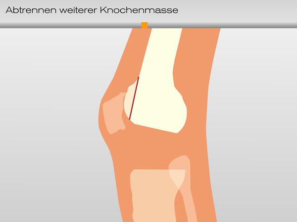 knie_knochenmasse01-600