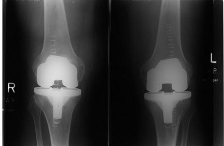 Gelenkzentrum Berlin   Hüftersatz, Kniegelenkersatz und Fußchirurgie