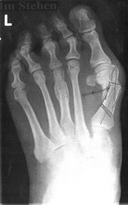 Gelenkzentrum Berlin | Hüftersatz, Kniegelenkersatz und Fußchirurgie