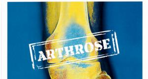 Dr. Masyar Rahmanzadeh im Orthopress-Magazin, 2019
